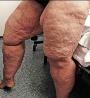 Amazing Transformation Of Housewife Who Had Astonishing 12 Litres Of Fat Sucked From Her Thighs